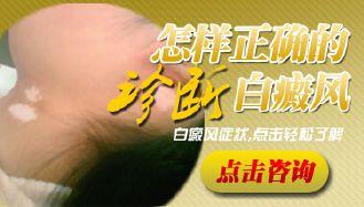 <a href=//www.cdbrbb.com/ target=_blank>成都博润</a>白癜风好不好?