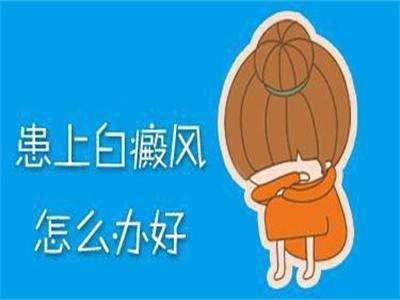 <a href=//www.cdbrbb.com/ target=_blank>成都白癜风医院</a>介绍:判断白癜风的方法是什么