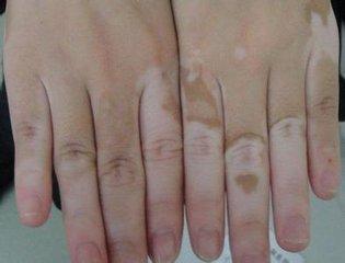 白癜风的治疗要看皮肤颜色再治疗