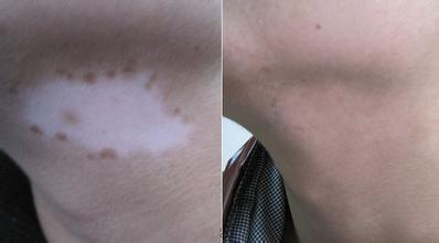 剖析白斑、白点是否是白癜风的症状