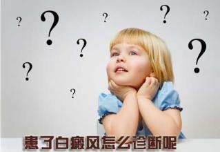 儿童白癜风怎么治疗呢